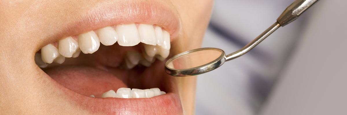 Care sunt serviciile stomatologice de care puteți beneficia cu încredere, pentru orice problemă dentară