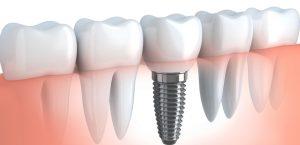 Ce-sunt-implanturile-dentare